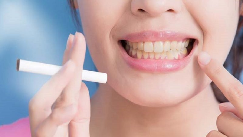 The Ache Of Dental Implants Mexico
